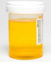 Stinkender Urin Urin pinkeln