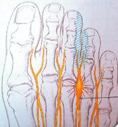 Nervenschmerzen Zehen